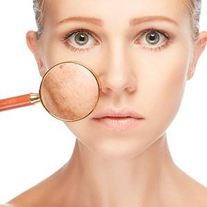 pigmentation treatment melbourne
